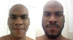 Antonio from Venezuela Grows A Beard For 60 Days