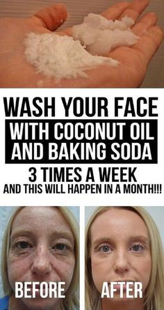 Coconut oil for skin - Wash your face with coconut oil and baking soda 3 times a week, and this will happen in a Month Facebfit com Baking Soda Face Wash, Baking Soda Shampoo, Baking Soda For Skin, Baking Soda Scrub, Baking Soda Bath, Baking Soda Coconut Oil, Baking Soda Uses, Coconut Oil For Skin, Coconut Oil Hair Mask