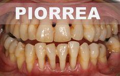 ☞ Remedios caseros para la periodontitis o piorrea – Como tratar la pior...