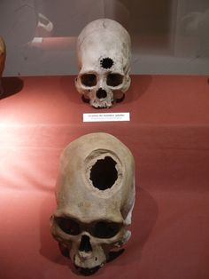 """""""Evidence of brain surgery is shown in ancient Incan skulls. A piece of the skull was chipped out and the unhealthy part of the brain was removed. The the hold was covered by a piece of metal. If you notice the thin layer of skull forming on the inner edges of the hold in the bottom picture...This bone growth signifies it allowed the person to live for several  more months."""""""