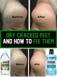 Dried cracked feet and how they can be fixed Foot Remedies, Herbal Remedies, Natural Remedies For Bronchitis, Healthiest Nut Butter, Heinz Vinegar, Dry Cracked Feet, Smooth Feet, Jpg