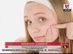 Exista game de tratament care pot controla complet acneea, mai ales formele usoare, acneea usoara sau moderata. Vorbind despre aceasta gama de produse de control al acneei, ea contine sapun, contine un gel de tratament, o crema de tratament, contine un spray, contine o masca cu proprietati antiinflamatorii si mai contine un supliment oral, care, la fel, are rolul de a regla secretia de sebum si de a scadea inflamatia, adica roseata din piele.  Iata care sunt ingredientele cu actiune…
