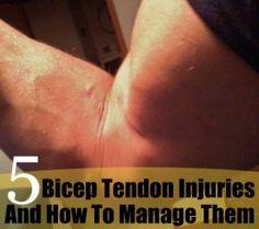 Bicep Tendon Injuries