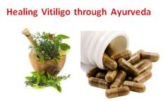 Ayurvedic treatment is considered as a safest option for vitiligo cure as authentic Ayurvedic medicines works on the root cause of the disorder and safe enough for even a small kid of 6 months age.  Ayurvedic  treatment for vitiligo actually provides better immunity by correcting body metabolism. It also penetrates melanocytes for better pigmentation over area of a white spot. It assures no further spread.