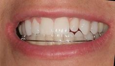 Once your teeth are aligned correctly, the Inman Aligner acts like a retainer and holds them in place. The Inman Aligner is designed to treat the upper and lower front teeth. Best Dentist, Dentist In, Porcelain Veneers, Root Canal Treatment, Teeth Braces, Dont Forget To Smile, Smile Design, Dental Implants