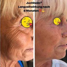 = JUCHHEIM = LUXUS COSMETIC von Dr. Juchheim mit Sofort und Langzeitwirkung hält was sie verspricht. Hol Dir Deinen persönlichen VORHER-NACHHER-WOW-EFFEKT✔ 🌿ohne Parabene 🌿ohne Parffine🌿ohne Hormone🌿ohne Tierversuche
