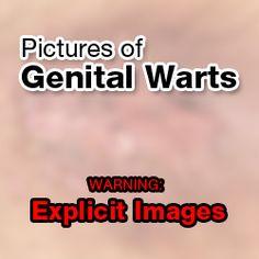Obat kutil kelamin yang terdiri dari kapsul dan untuk merontokan kutil bisa menggunakan salep, 2 pengobatan ini ampuh mengobati kutil kelamin hingga sembuh tuntas tanpa meninggalkan bekas