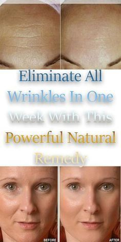 Eliminate All Wrinkles In One Week With This Powerful Natural Remedy