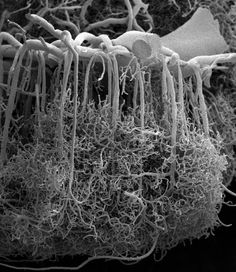 Alfonso Rodríguez-Baeza and Marisa Ortega-Sánchez (2009). Photomicrograph of the microscopic blood vessels that shuttle oxygen and nutrients to neurons in the brain, obtained with a scanning electron microscope. This sample, from Human cerebral cortex, shows a large blood vessel at the surface of the brain (top), which sends down thin, densely branched capillaries to deliver blood throughout the entire cortex.