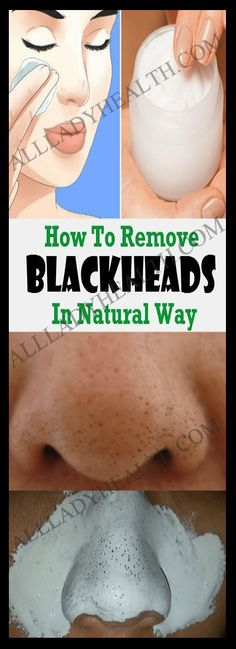 How To Remove Your Problem With Blackheads And Minimize Your Pores In Natural Way #health #beauty #skin #blackheads #natural