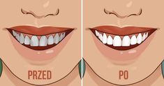 Is there a secret for a beautiful smile and fresh breath? The answer is very surprising and interesting. Oil pulling is an age-old method for oral health. It's popping up again as a go-to remedy for gingivitis, plaque, teeth-whitening, and bad breath. Diy Beauty, Beauty Hacks, Plaque Removal, What Is The Secret, Health Heal, Oil Pulling, Natural Home Remedies, Beautiful Smile, Teeth Whitening