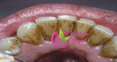 5 ADIMDA DİŞ BEYAZLATMA YÖNTEMİ! Dişler üzerindeki maden yatağı tartar olarak bilinir.Zaman geçtikçe, tartar miktarı artar ve dikkat etmezseniz, ağır diş hastalıklarına neden olabilir. Elbette, tartar'ı çıkarmanın en iyi yolu, diş hekimini ziyaret etmektir, ancak başka bir yol da evde tartar çıkarmaktır. Bunu yapmak için, ihtiyacınız olan şey: –Su –Diş fırçası –Hidrojen peroksit %3 oranlı …