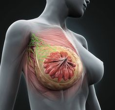 Cancer inflammatory lesions breast brain