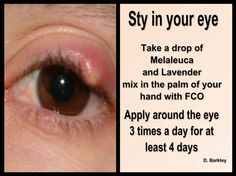 Skin Care Advice For Better Skin Now - Lifestyle Monster Essential Oils For Stye, Young Living Essential Oils, Eye Stye Remedies, Eczema Remedies, Sty Remedies, Natural Remedies, Face Scrub Homemade, Young Living Oils, Essential Oil Blends