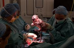 Cesarean Delivery May Cause Epigenetic Changes In Babies DNA