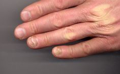 Soubor:Onycholysis left hand 34yo male ring and little fingers non-fungal.jpg