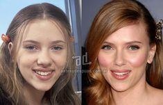 Nose Job, Rhinoplasty, Scarlett Johansson