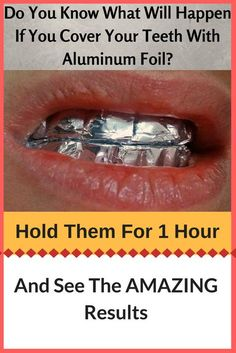 Do You Know What Will Happen If You Cover Your Teeth With Aluminum Foil? Hold Them For An Hour And See The AMAZING Results