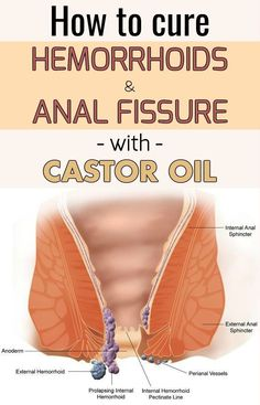 How to treat an anal fissure