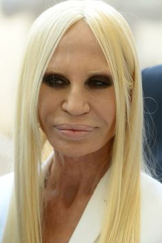 Donatella Versace. | The 27 Most Extreme Celebrity Plastic Surgeries Of All Time Donatella Versace Plastic Surgery, Botched Plastic Surgery, Plastic Surgery Gone Wrong, Bad Plastic Surgeries, Celebrity Plastic Surgery, Facial, Eye Doctor, Choices, Being Ugly