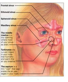 Sinus Remedies Sinus Infection (Sinusitis) treated with Ayurvedic Diet Acne On Nose, Nose Pimples, Sinus Remedies, Allergy Remedies, Nasal Allergy, Cold Remedies, Natural Remedies, Chest Congestion, Home Remedies