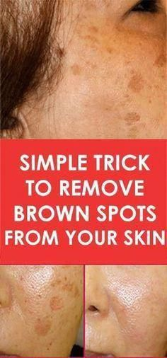 Simple Trick To Remove Brown Spots From Your Skin. There is nothing with… Simple Trick To Remove Brown Spots From Your Skin. There is nothing with…,Vaseline Beauty Tips Simple Trick To Remove. Sun Spots On Skin, Black Spots On Face, Brown Spots On Hands, Spots On Legs, Dark Spots, Sunspots On Face, Anti Aging, Age Spot Removal, Home Treatment
