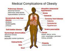 19 Best Comorbidities Images Health Wellness Health Fitness