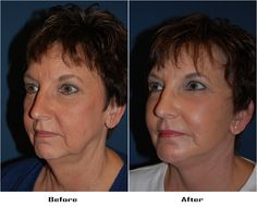 Procedures Performed: Eyelid: Lower Lid Blepharoplasty with SOOF Deep Plane Face Minituck Facial Implants: Chin Implant Laser Resurfacing: eyes and mouth Dr. Freeman's Makeovers Facial Implant, Chin Implant, Co2 Laser Resurfacing, Eyes, Plane, Aircraft, Cat Eyes, Airplanes, Airplane