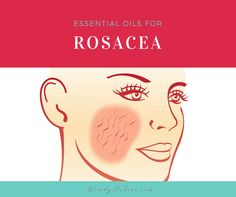 Essential Oils can be very helpful when dealing with rosacea. Learn about the best essential oils for rosacea and other helpful tips..
