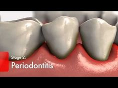 Diabetes and Gum Disease Video - Diabetics High Risk for Oral Health Problems Colgate3 - YouTube