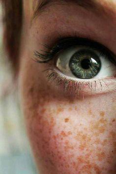 I see a green eye & freckles...