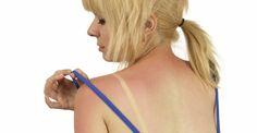 Rimedi naturali contro le scottature solari