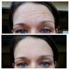 Posso usar o Instantly Ageless com maquiagem? Claro que Sim! Pode ser aplicado com ou sem maquiagem, no entanto, sua pele deve estar limpa e livre de óleo, suor, gordura para absorção máxima. Observe os 3 passos principais para a aplicação:  Limpar e deixar a pele seca  Passar o Instantly Ageless aplicando com leves toques (veja os vídeos abaixo)  Após a aplicação do Instantly Ageless, deixe-o secar e então você pode se maquiar (NÃO USE BASE LIQUIDA)