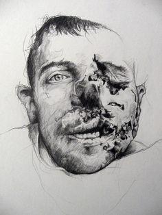 Défiguration  © Joseph Loughborough, Gueule cassée 2