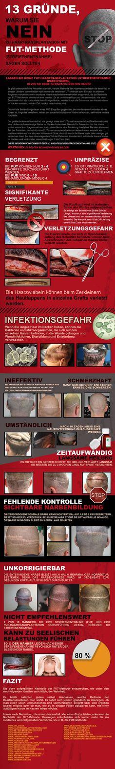 FUT Haarverpflanzung Haartransplantation Streifenmethode Nachher Fotos Ergebnisse Donor zone Q-5