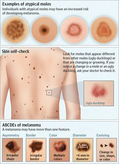 Atypical moles can be larger than common moles, irregularly shaped, and of multiple colors.Also called dysplastic moles, atypical moles may be genetic or caused Nursing Tips, Nursing Notes, Medical Facts, Medical Information, Medical Symptoms, Dermatology Nurse, Health And Wellness, Health Tips, Medical Assistant