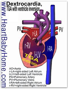 Heart Defect: Dextrocardia, TGA with Ventricle Inversion