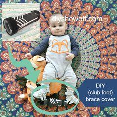 DIY {club foot} brace cover tutorial @diyshowoff