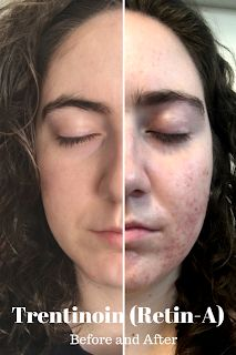 Tretinoin Cream 0 025 Before And After Photos Bing