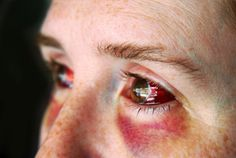 Assurance viol : au Michigan, les femmes doivent prévoir le pire