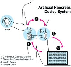 Why the Medtronic 530G is NOT an Artifical Pancreas but it's a step in the right direction. We will be getting it in less than a year!!