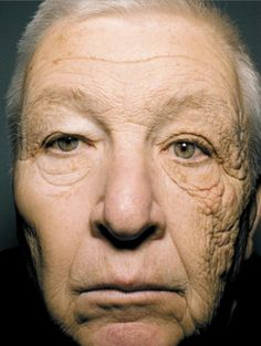 Unilateral Dermatoheliosis.  This stunning image of a 69 year old shows the effects of sun exposure on premature aging of skin. The man was a truck driver for 28 years during which the sun predominantly shinedonto his facethrough his left window.