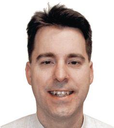 Adult Braces, Damon Braces for Adults Braces Before And After, After Braces, Before And After Pictures, Damon Braces, Amazing Transformations, Orthodontics, Smile, Cosmetics, Gallery