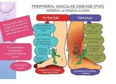 PVD - arteriole vs venous. Great review for a Med Surg exam or the NCLEX. DLW