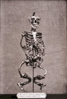 Skeleton deformed by Rickets, 1879. Rickets is a disorder caused by a deficiency of vitamin D, calcium, or phosphate. Rickets leads to softening and weakening of the bones and is seen most commonly in children 6-24 months of age.  Photo: The Burns Archive