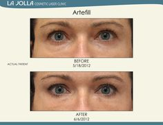 Patient treated with Artefill at La Jolla Cosmetic Laser Clinic. Skin Care Regimen, Skin Care Tips, Under Eye Fillers, Under Eye Puffiness, Laser Clinics, Happy Skin, How To Apply Makeup, La Jolla, Skin So Soft
