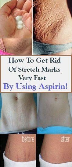 How To Get Rid Of Stretch Marks Very Fast By Using Aspirin Beauty Care, Beauty Skin, Beauty Hacks, Health And Beauty, Beauty Secrets, Diy Beauty, Healthy Beauty, Homemade Beauty, Face Beauty