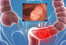 Colon cancer is the second leading cause of cancer mortality in America. Unfortunately, most people with colon cancer do not have any symptoms in the early stage of the disease. Although this type of. Homemade Colon Cleanse, Colon Cleanse Diet, Natural Colon Cleanse, Colon Cancer Symptoms, Types Of Cancers, Natural Cures, Healthy Tips, Home Remedies, The Cure