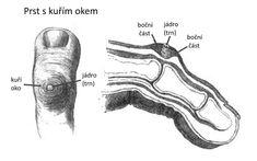 Kuří oko: jak ho poznat, přírodní léčba, prevence | Pleva It Cast, Medicine