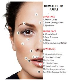BOTOX®, Restylane, and JUVEDERM®, are facial rejuvenation treatments.A youthful appearance is the best thing you can wear. Face Fillers, Botox Fillers, Dermal Fillers, Cosmetic Fillers, Botox Injection Sites, Botox Injections, Relleno Facial, Hyaluron Filler, Aesthetic Dermatology